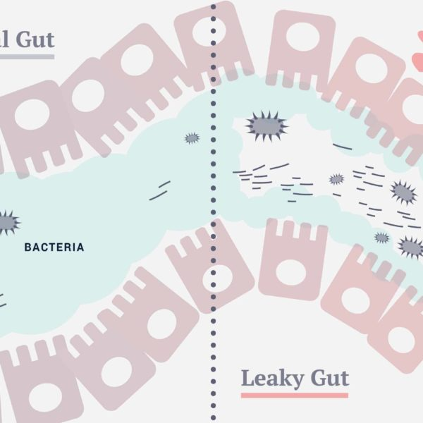 Did you know that leaky gut syndrome affects your entire body and not just your digestion?