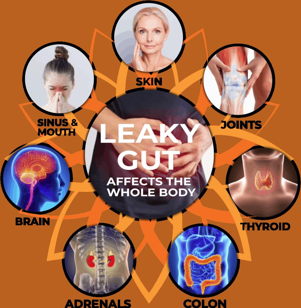 Leaky gut help